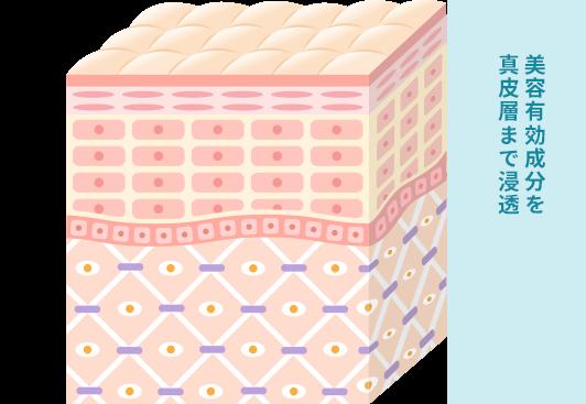 イオン導入の治療の仕組みと通院ペースの画像1